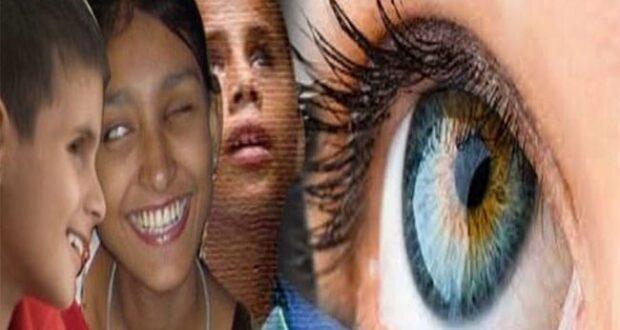 एम्स ऋषिकेश आई बैंक में 13 लोगों की दान की गई आंखों से 19 लोगों का जीवन रोशन हुआ ….पद्मश्री रविकांत