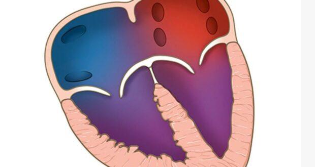 एक बच्चे,2 यूवाओ की एम्स में हुई एवीएसडी की सफल हार्ट सर्जरी    लंबे समय से थे दिल की गंभीर बीमारी से ग्रसित