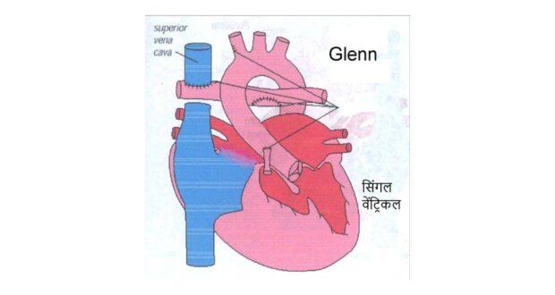 एम्स ने किया तीन छोटे बच्चों के दिल का सफल बी.डी. ग्लेन ऑपरेशन